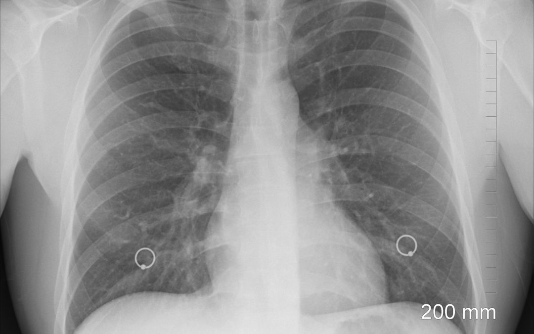 Startuje čtvrtý národní screening – plic. Měl by zásadně ovlivnit vysokou úmrtnost lidí na pneumologické nádory